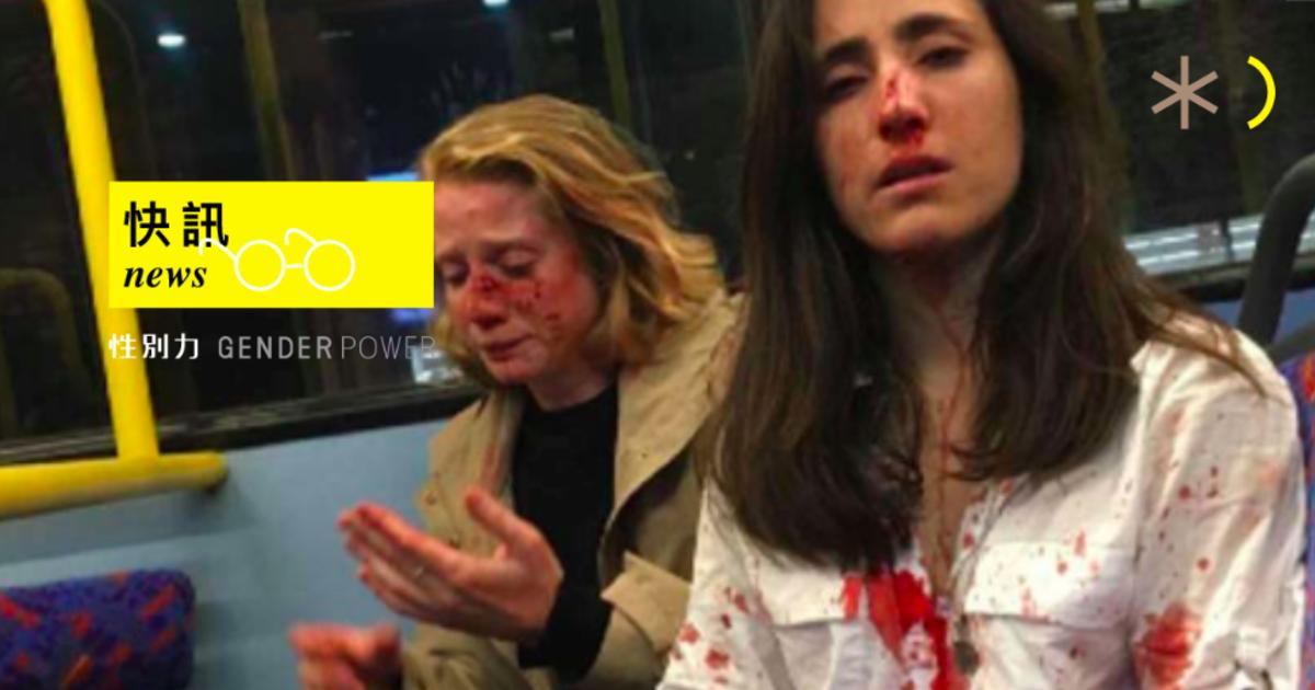 快訊|英國女同志情侶遭襲擊:逼我們表演接吻,不照做就挨揍
