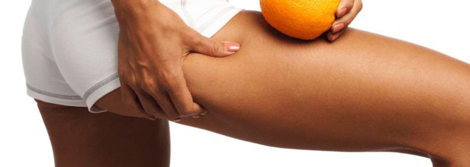 與橘皮分手:增加肌肉量比按摩更有效|女人迷 Womany